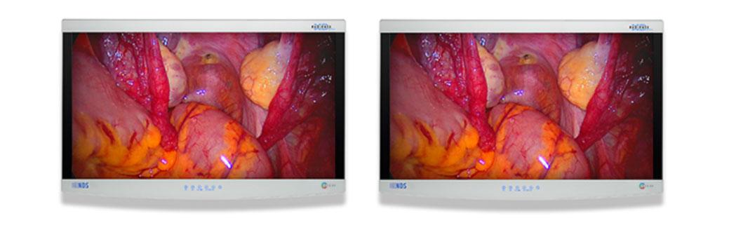 IT screens hospital medical